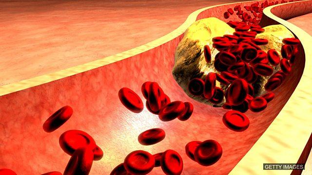 Cholesterol treatment, heatwave in Britain