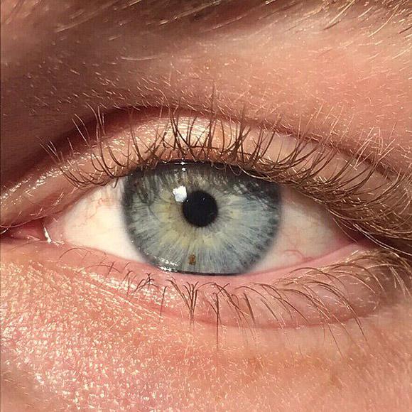 想要眼珠变蓝吗?新激光手术20秒就能帮你实现