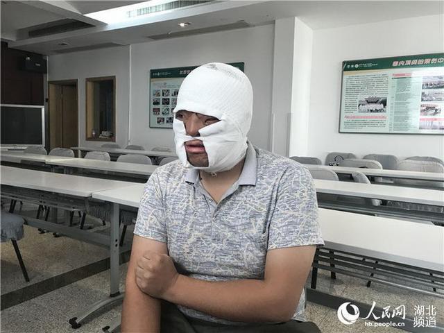武汉小伙成功换脸 将迎来崭新生活(双语)